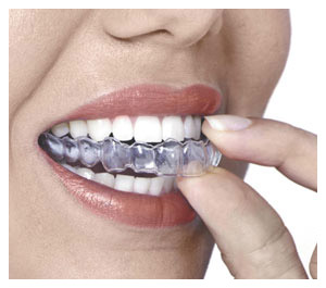 New Smile Clear Aligners