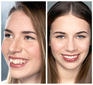 snellville smile makeover