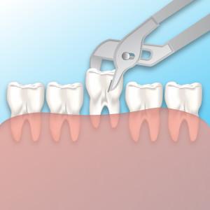 dental extractions snellville ga