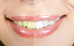 teeth whitening before and after snellville