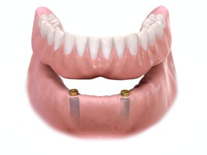 dental implant supported overdenture