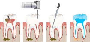 root canal snellville