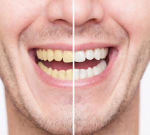 teeth whitening snellville ga