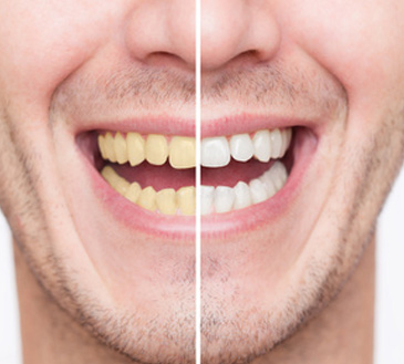 Whitening Can Improve Your Smile