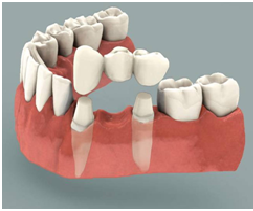 Implants vs Dental Bridges