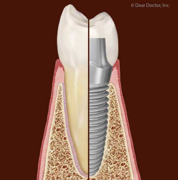 implant tooth replacements