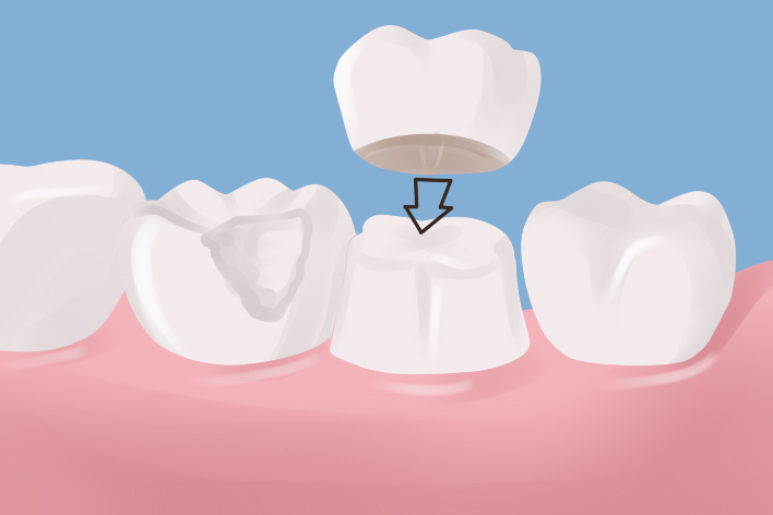 Dental Crowns Last