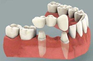 dental bridge in mouth