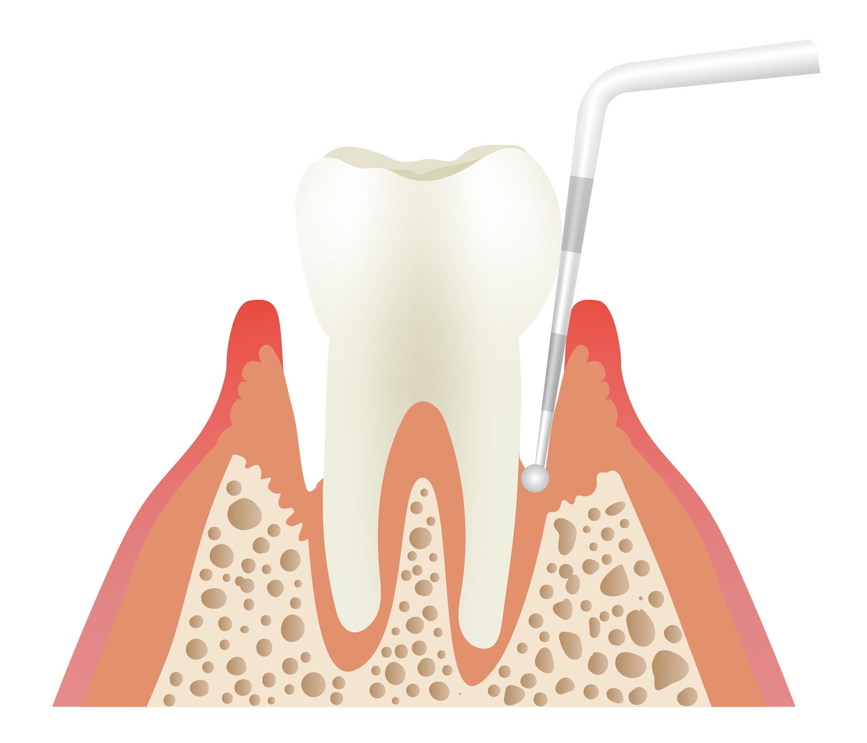 Gum Concerns